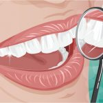 Ästhetischer zahnersatz für schöne Zähne | Zahnarzt Lauf