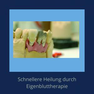 Mithilfe der Eigenbluttherapie können Wunden nach zahnärztlichen Operationen schneller heilen.
